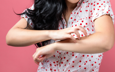 Can a Food Allergy Test Help Your Eczema?